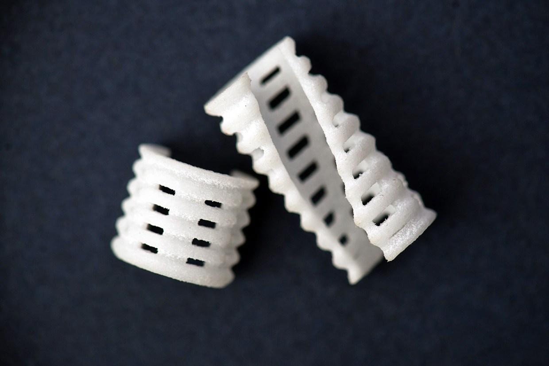 3D-Printed Airway Splints Cure Deadly Trachealbroncomalacia