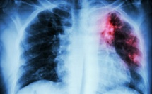 Maryland Treats Patient With Drug-Resistant Tuberculosis: Were Other People Exposed?
